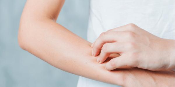 ¿Cómo tratar las cuatro causas más comúnes de la piel seca?